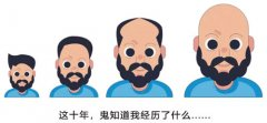 广州脂溢性脱发植发治疗怎么样?