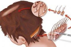 种植发际线会很痛吗